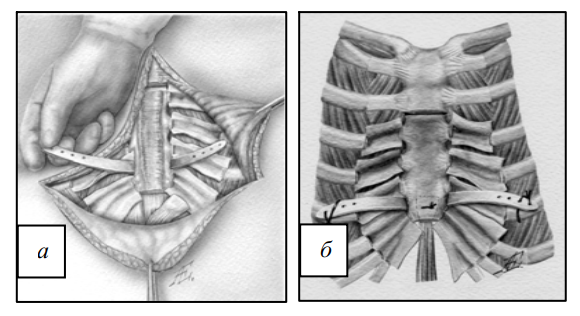 Фиксация грудино-реберного комплекса с помощью пластины из сплава с эффектом памяти формы