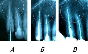 Композиция из наноструктурированного цельнолитого и пористого никелида титана в качестве зубочелюстных имплантатов