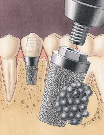 Зубные имплантаты (штифты) из титана с пористой поверхностью