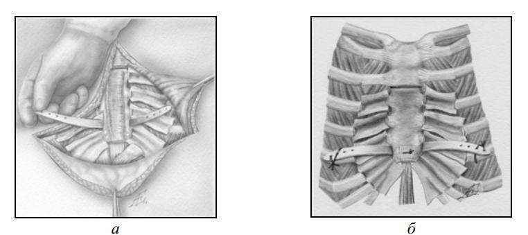 Фиксатор грудино-реберного комплекса «М-образная пластина»