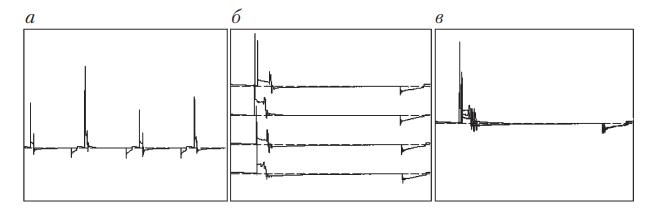 Характерные осциллограммы системы зажигания, выведенные в разных графических режимах