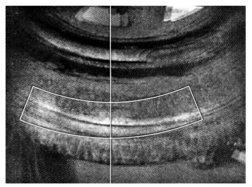 Изображение внутреннего дефекта шины