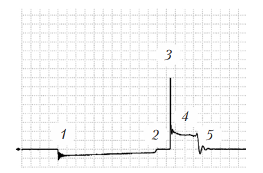 Осциллограмма вторичного напряжения для системы зажигания с двумя катушками